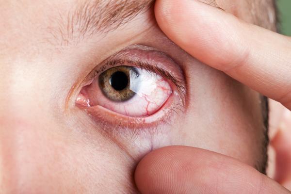 Cómo aliviar los ojos rojos de forma natural