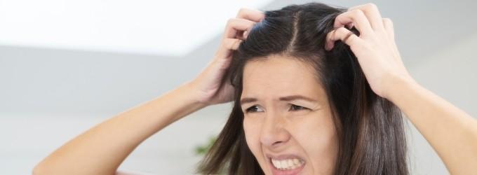 Remedios Caseros para el picor de cabeza