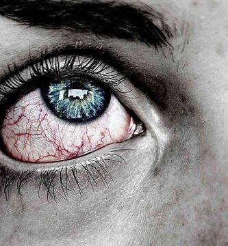Ojos hinchados al despertar